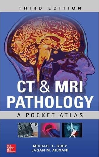 Tải sách: Bệnh Lý Học CT & MRI – Atlas Bỏ Túi